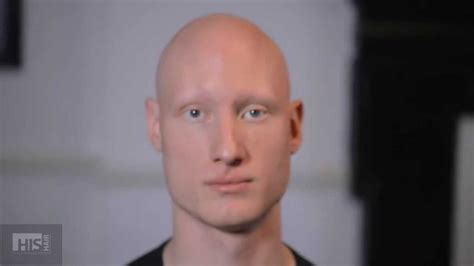 Scalp Micropigmentation for Alopecia - Stephen's Story at