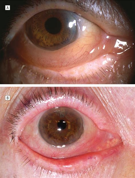 Postoperative Chemosis After Cosmetic Eyelid Surgery